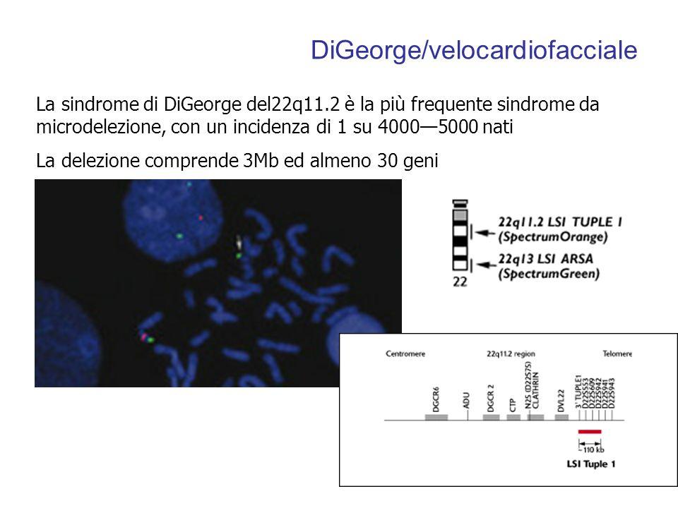 DiGeorge/velocardiofacciale