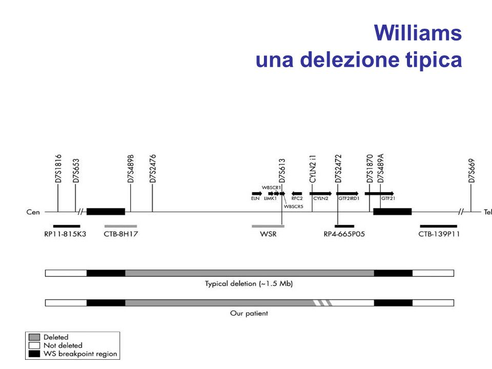 Williams una delezione tipica
