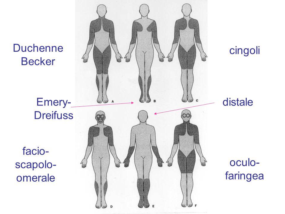Duchenne Becker cingoli Emery- Dreifuss distale facio-scapolo- omerale oculo- faringea