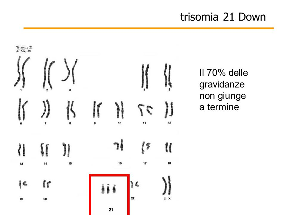 trisomia 21 Down Il 70% delle gravidanze non giunge a termine