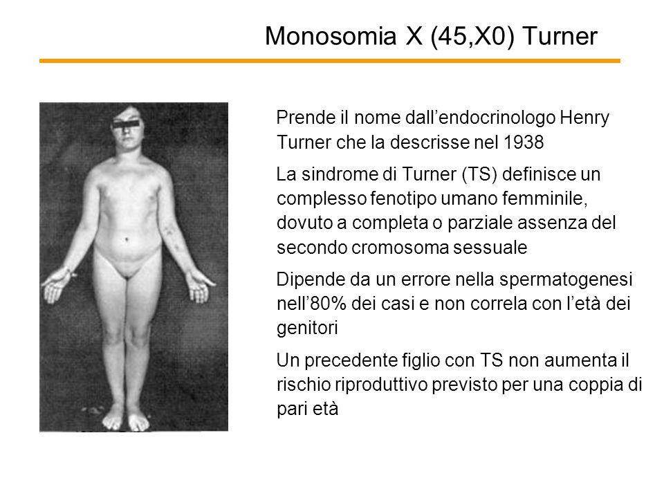 Monosomia X (45,X0) Turner Prende il nome dall'endocrinologo Henry Turner che la descrisse nel 1938.
