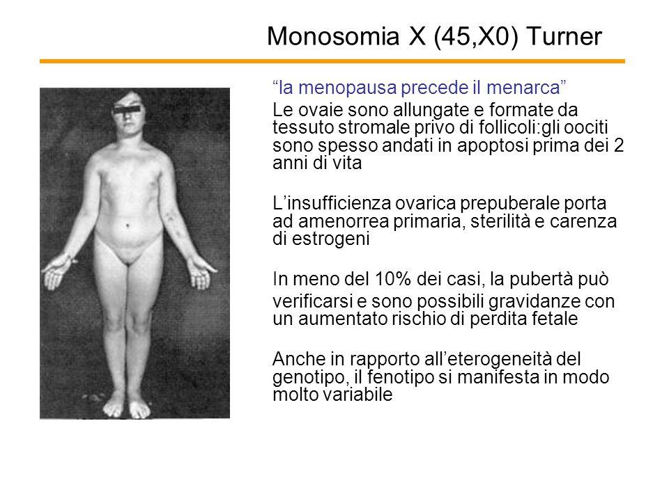 Monosomia X (45,X0) Turner la menopausa precede il menarca