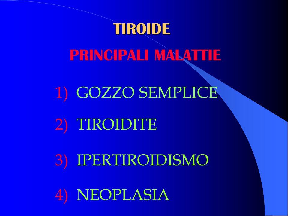 TIROIDE PRINCIPALI MALATTIE 1) GOZZO SEMPLICE 2) TIROIDITE 3) IPERTIROIDISMO 4) NEOPLASIA