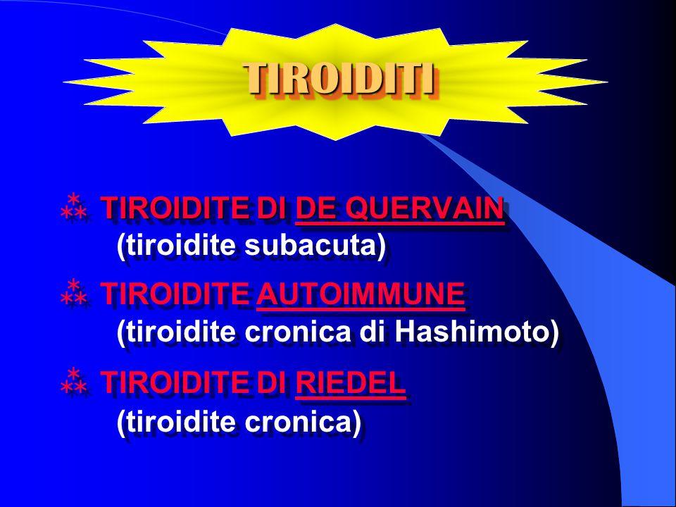 TIROIDITI TIROIDITE DI DE QUERVAIN (tiroidite subacuta)