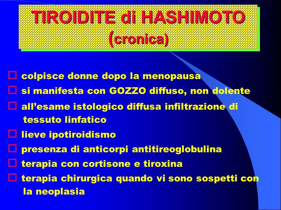 TIROIDITE di HASHIMOTO (cronica)