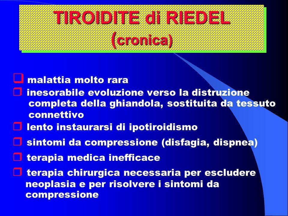 TIROIDITE di RIEDEL (cronica)