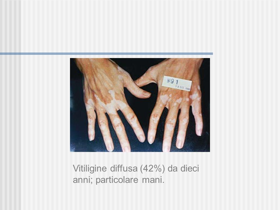 Vitiligine diffusa (42%) da dieci anni; particolare mani.