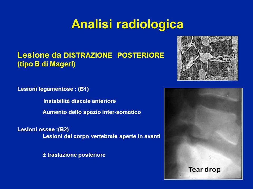 Analisi radiologica Lesione da DISTRAZIONE POSTERIORE