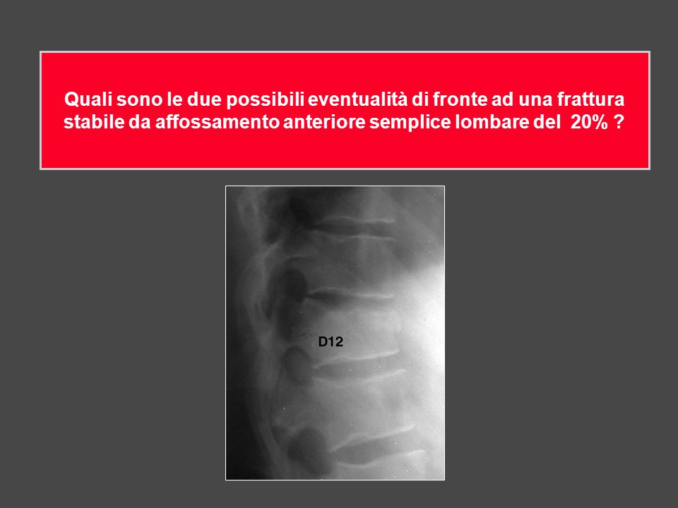 Quali sono le due possibili eventualità di fronte ad una frattura stabile da affossamento anteriore semplice lombare del 20%