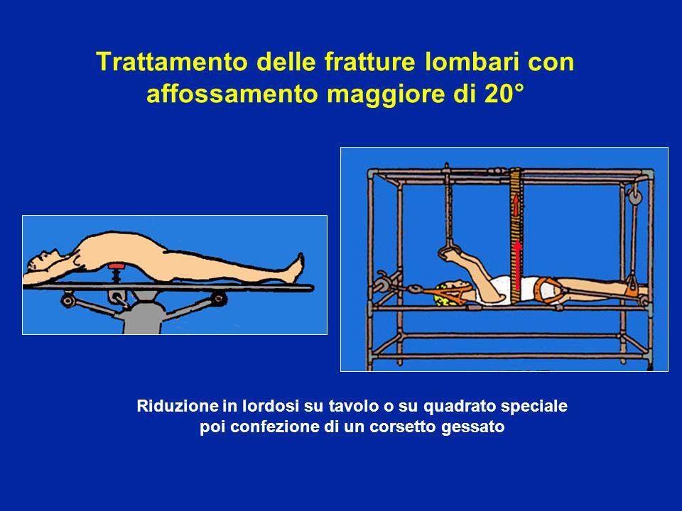 Trattamento delle fratture lombari con affossamento maggiore di 20°