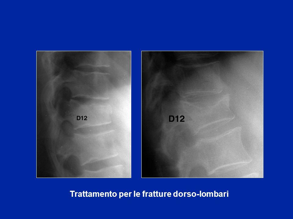 Trattamento per le fratture dorso-lombari