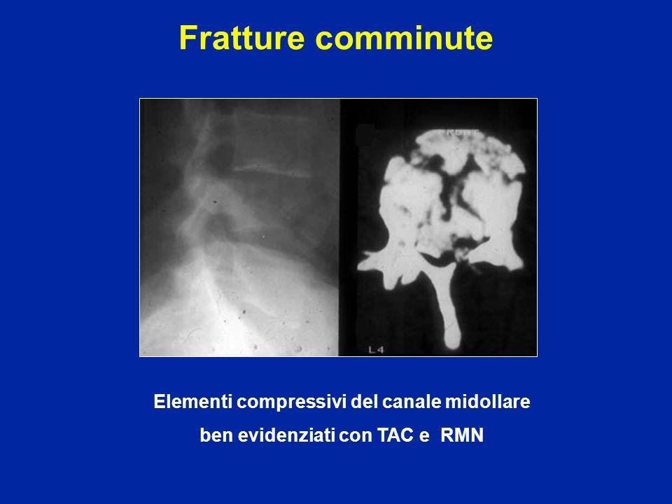 Fratture comminute Elementi compressivi del canale midollare
