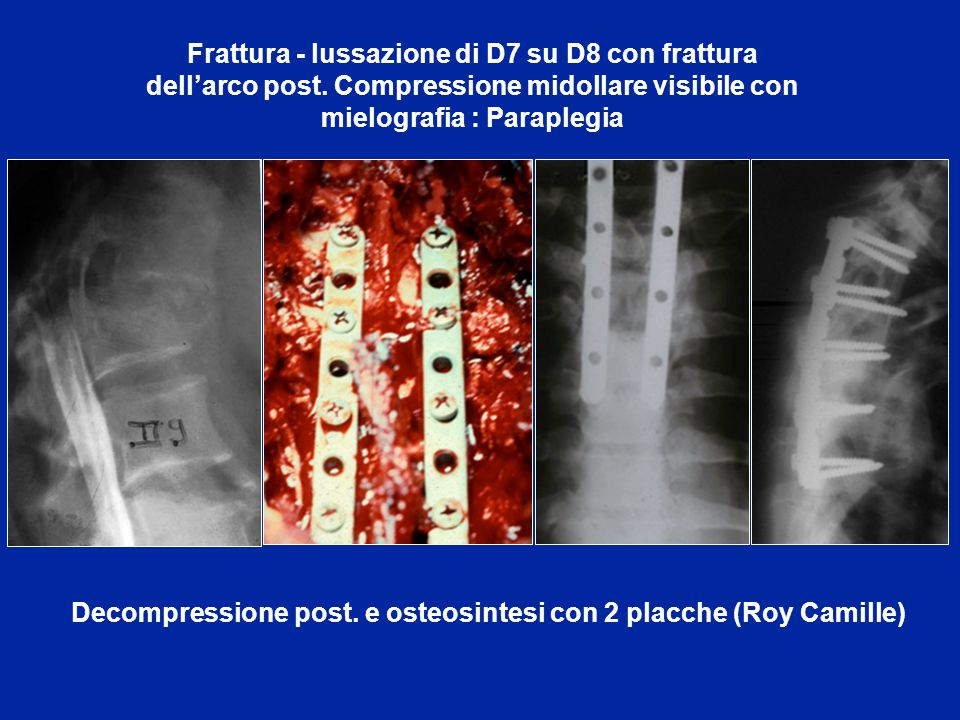 Decompressione post. e osteosintesi con 2 placche (Roy Camille)