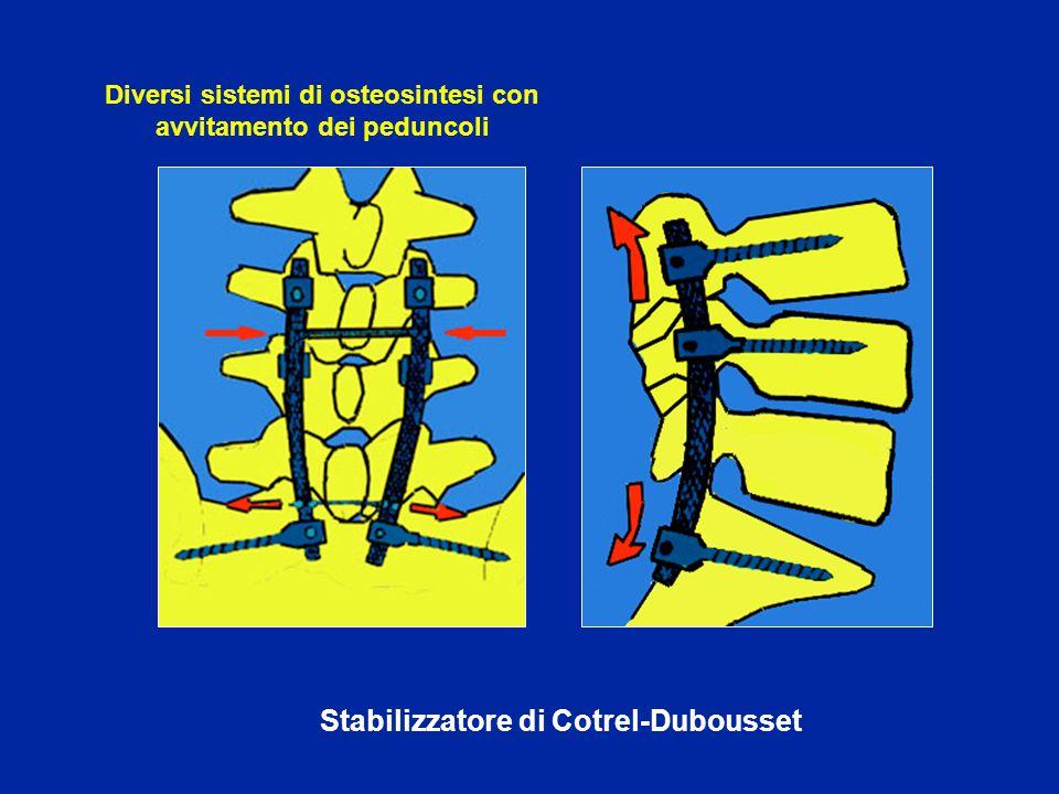 Diversi sistemi di osteosintesi con avvitamento dei peduncoli
