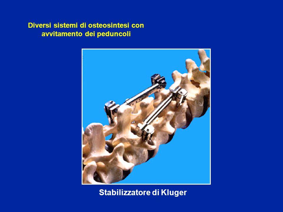 Stabilizzatore di Kluger