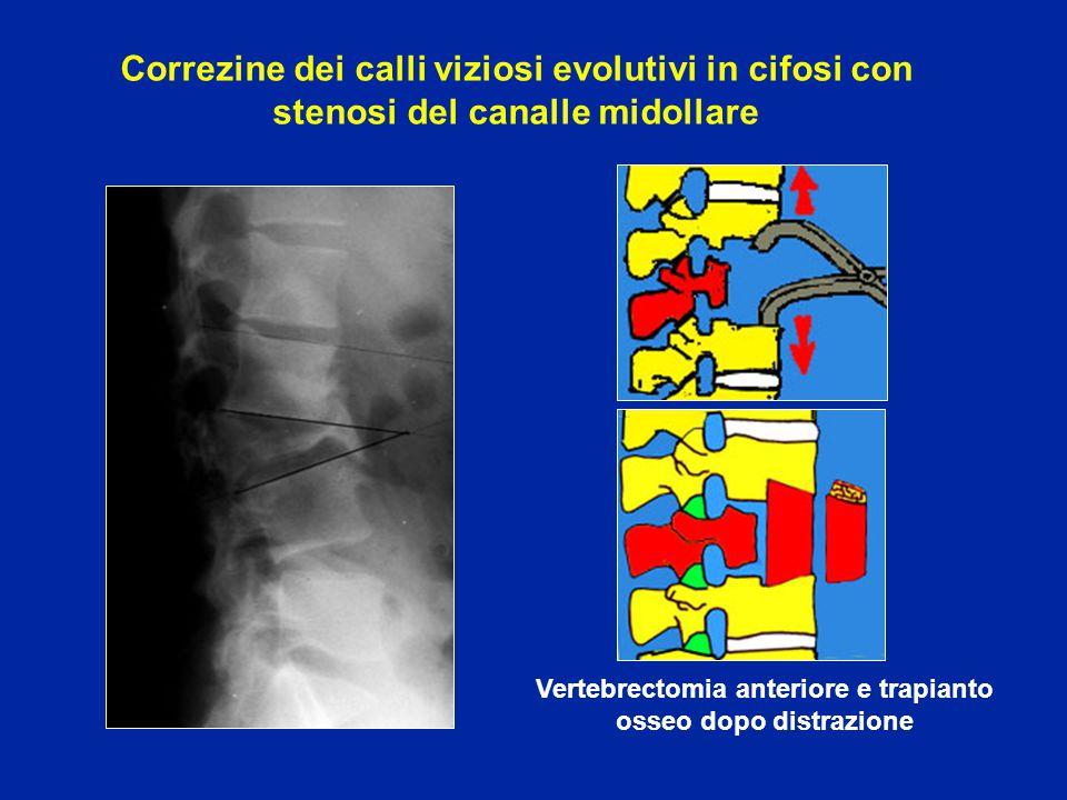 Vertebrectomia anteriore e trapianto osseo dopo distrazione