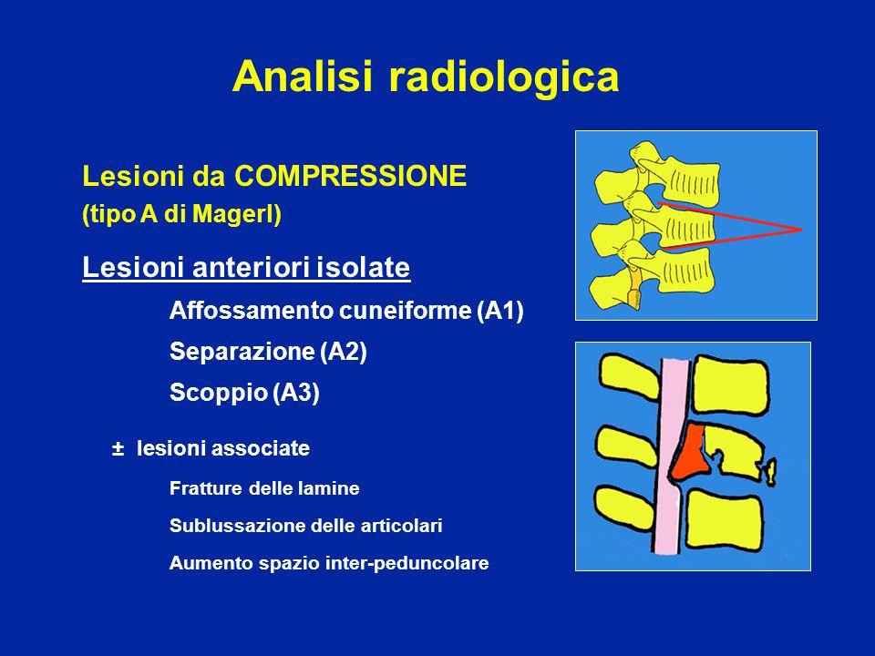 Analisi radiologica Lesioni da COMPRESSIONE Lesioni anteriori isolate