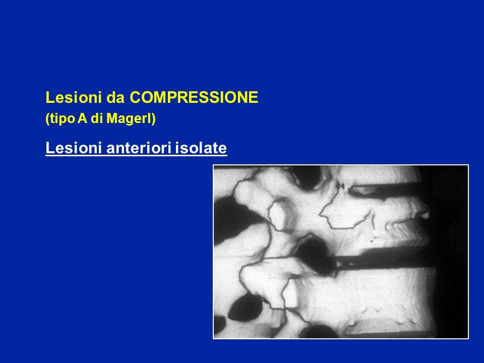 Lesioni da COMPRESSIONE Lesioni anteriori isolate