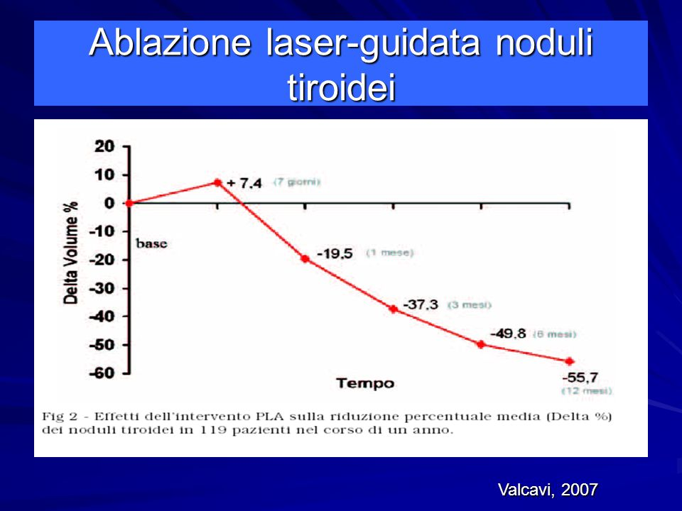Ablazione laser-guidata noduli tiroidei