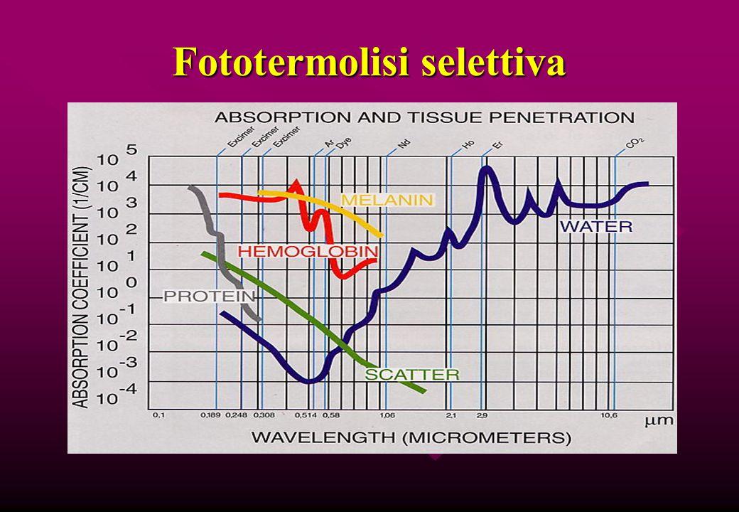 Fototermolisi selettiva