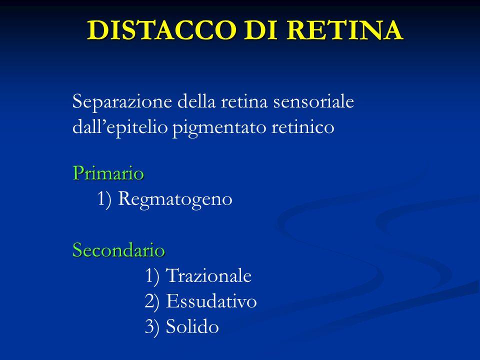 DISTACCO DI RETINA Separazione della retina sensoriale dall'epitelio pigmentato retinico. Primario.