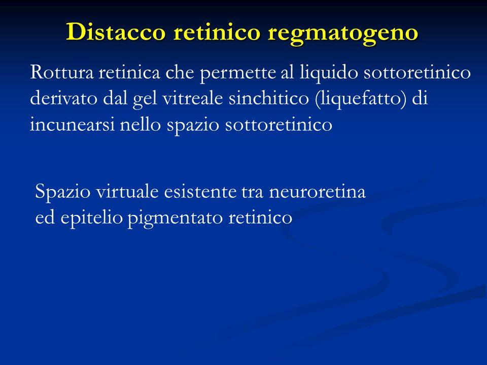 Distacco retinico regmatogeno