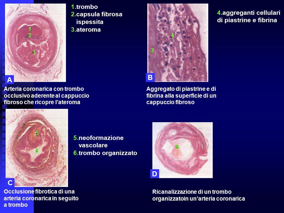 B A D C 1.trombo 2.capsula fibrosa 4.aggreganti cellulari ispessita
