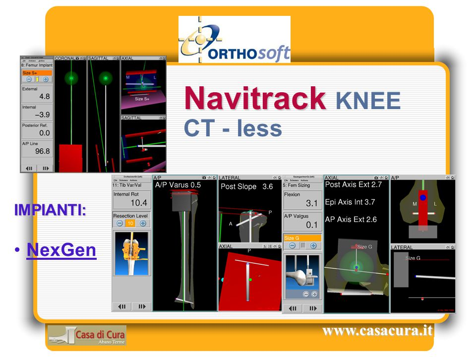 Navitrack KNEE CT - less