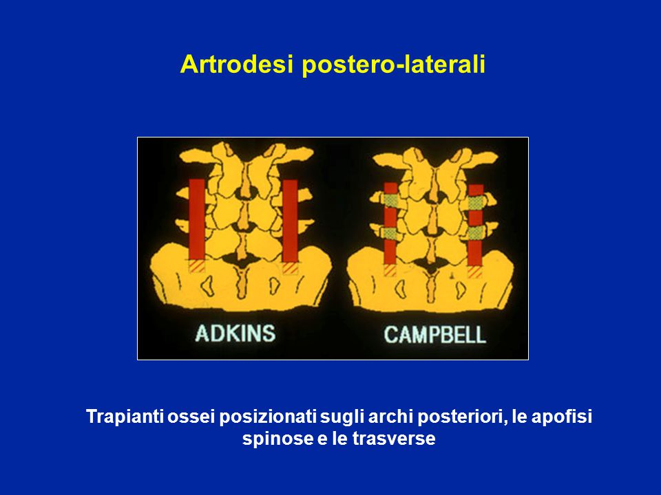 Artrodesi postero-laterali