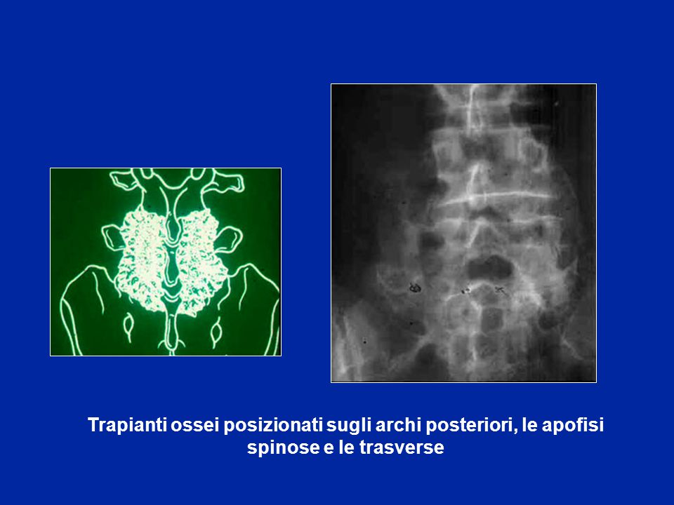 Trapianti ossei posizionati sugli archi posteriori, le apofisi spinose e le trasverse