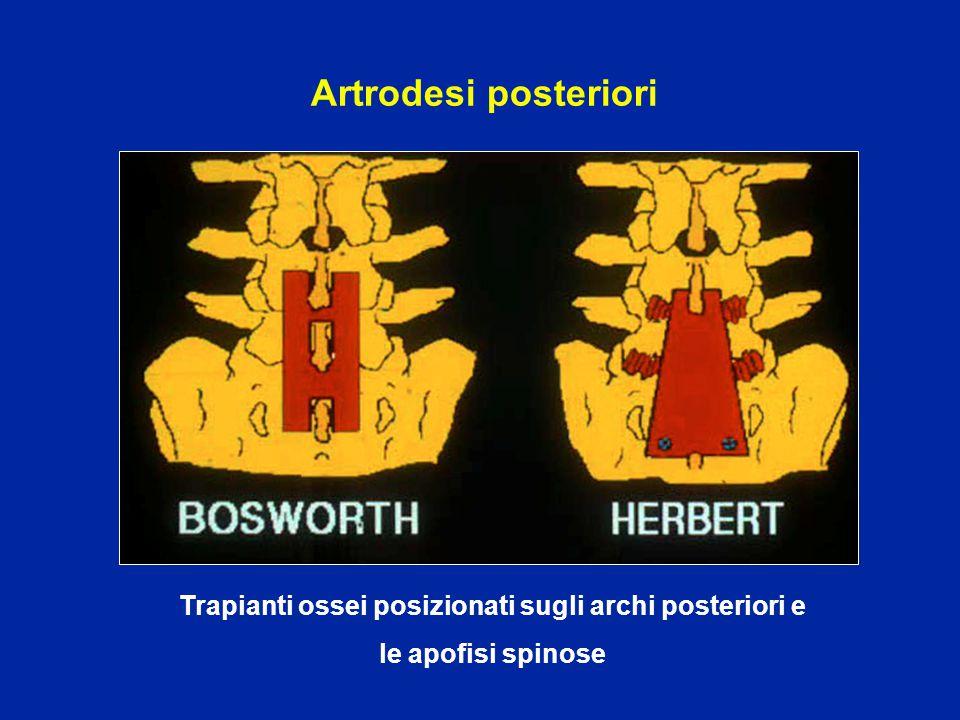 Trapianti ossei posizionati sugli archi posteriori e
