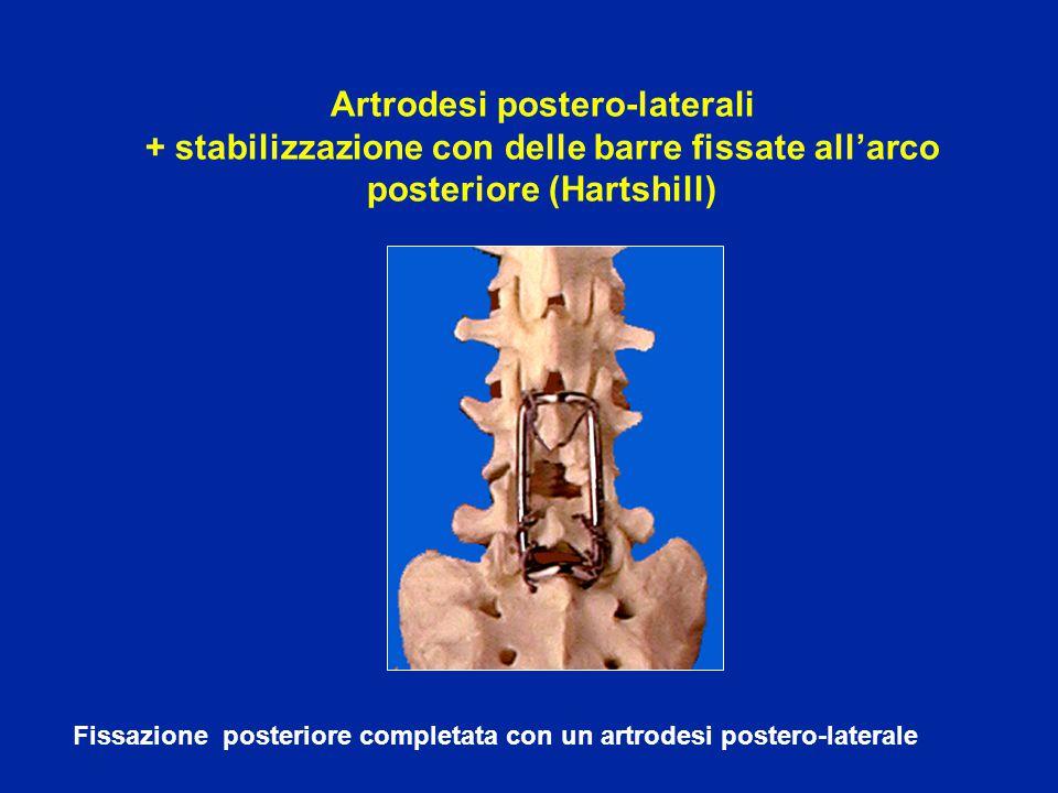 Artrodesi postero-laterali + stabilizzazione con delle barre fissate all'arco posteriore (Hartshill)