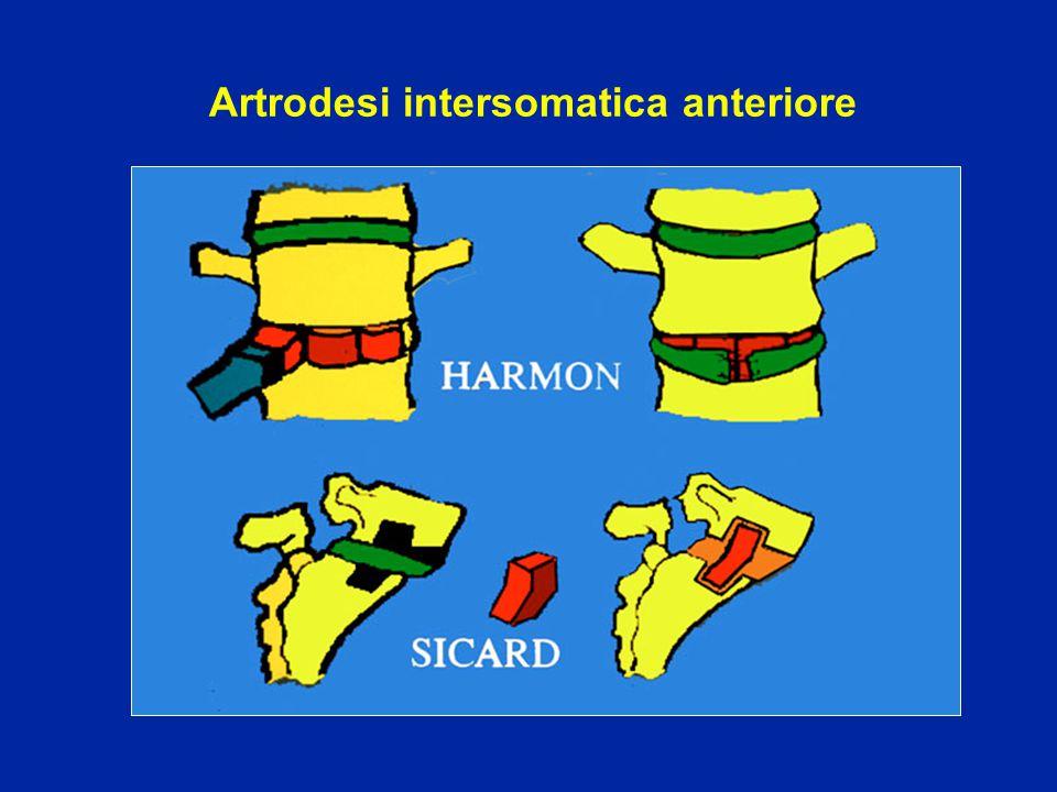 Artrodesi intersomatica anteriore