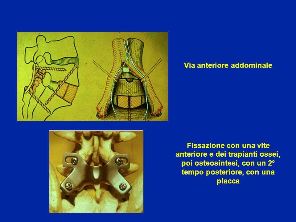 Via anteriore addominale