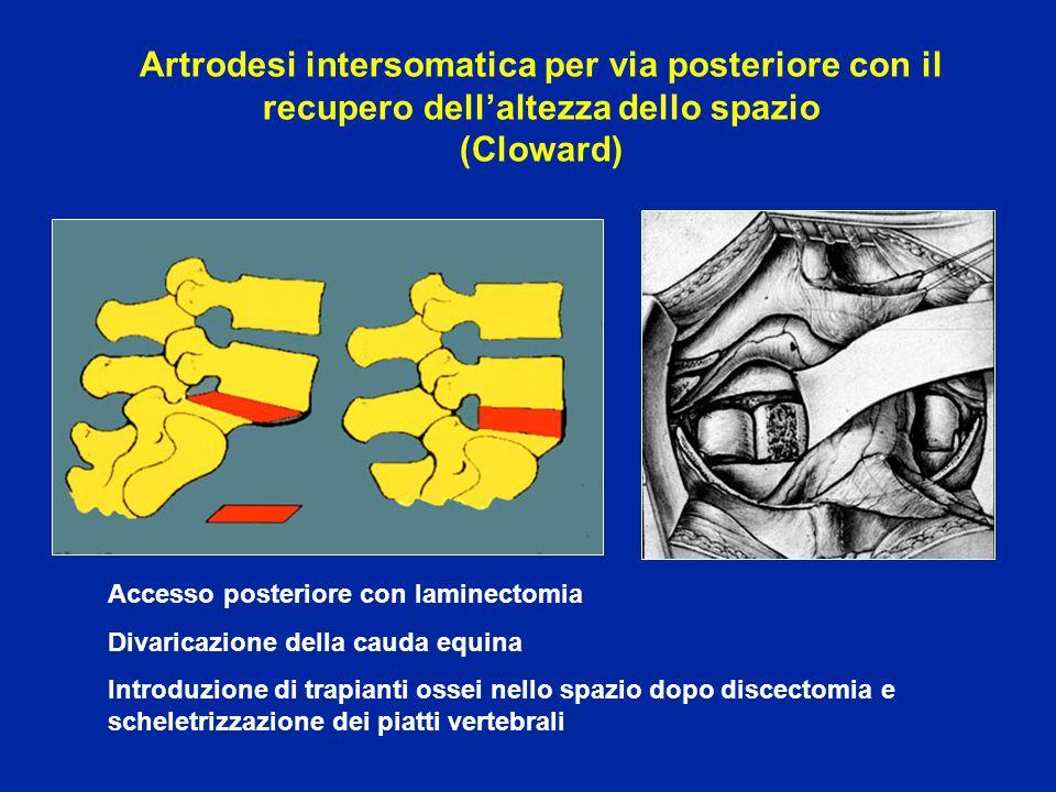 Artrodesi intersomatica per via posteriore con il recupero dell'altezza dello spazio (Cloward)