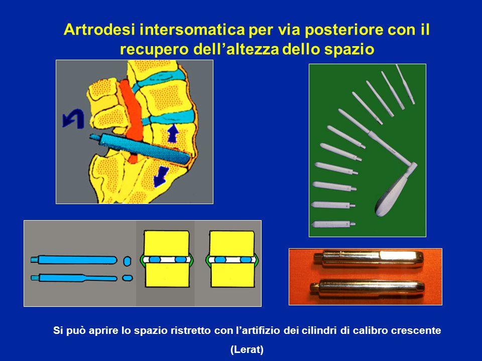 Artrodesi intersomatica per via posteriore con il recupero dell'altezza dello spazio