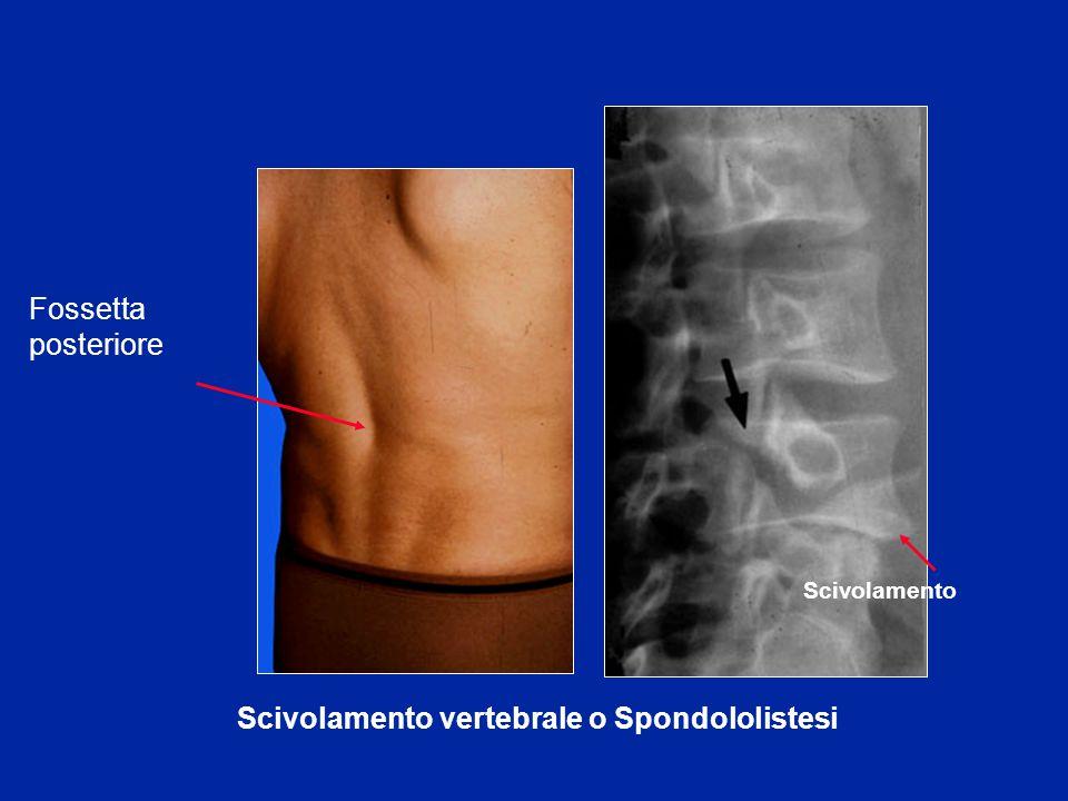 Scivolamento vertebrale o Spondololistesi