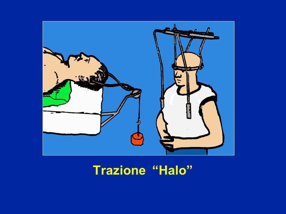 Trazione Halo