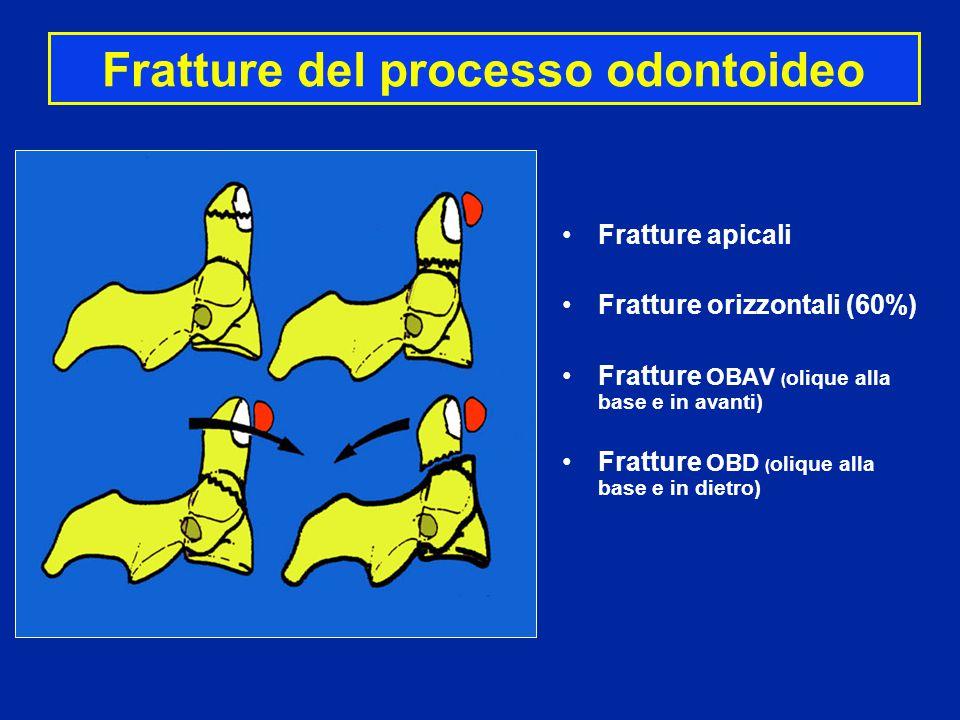 Fratture del processo odontoideo