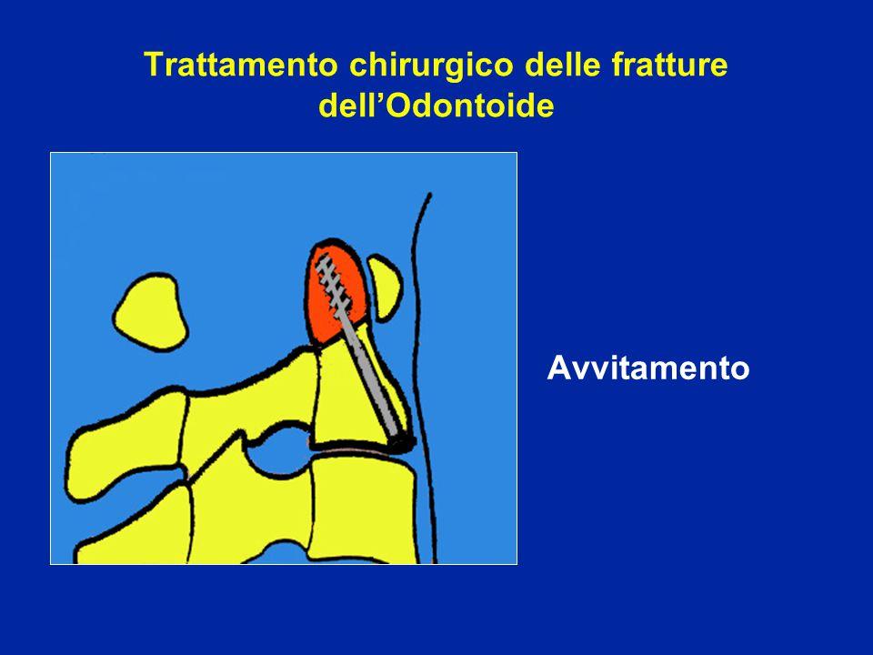 Trattamento chirurgico delle fratture dell'Odontoide