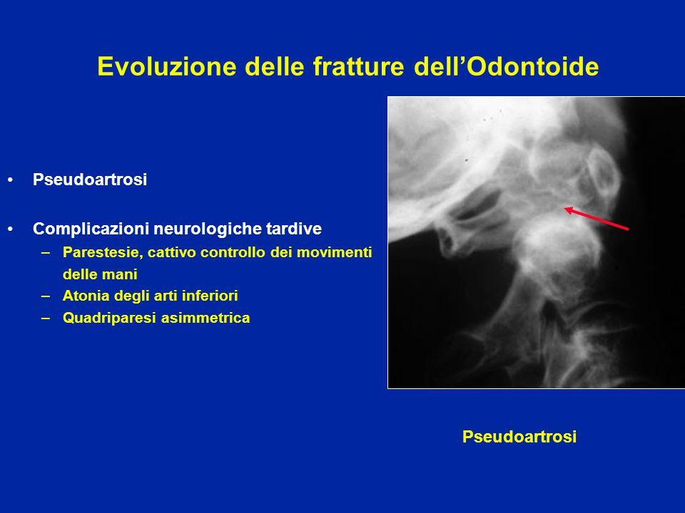 Evoluzione delle fratture dell'Odontoide