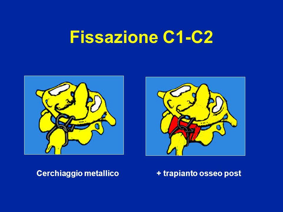 Fissazione C1-C2 Cerchiaggio metallico + trapianto osseo post