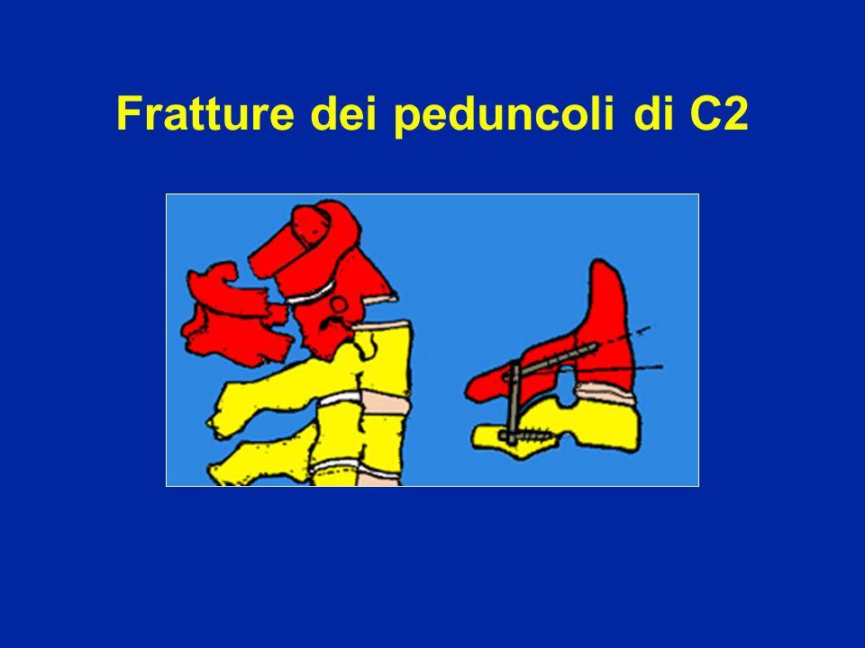 Fratture dei peduncoli di C2