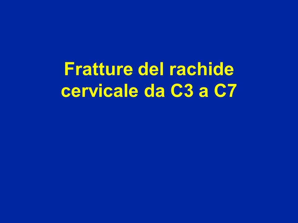 Fratture del rachide cervicale da C3 a C7
