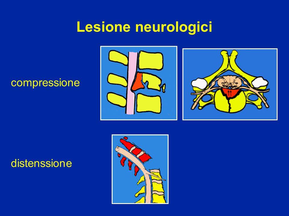 Lesione neurologici compressione distenssione