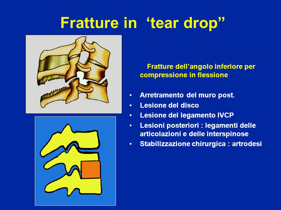 Fratture in 'tear drop