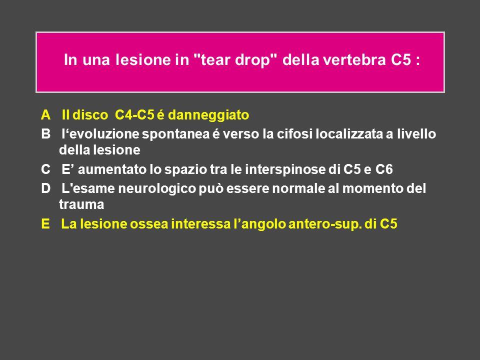 In una lesione in tear drop della vertebra C5 :