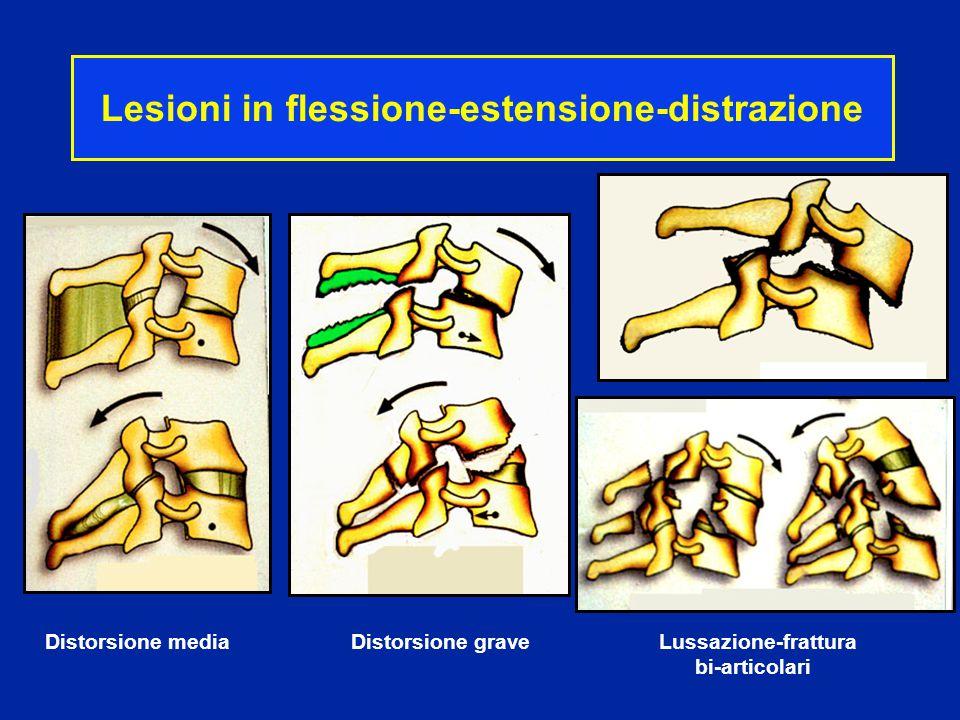 Lesioni in flessione-estensione-distrazione
