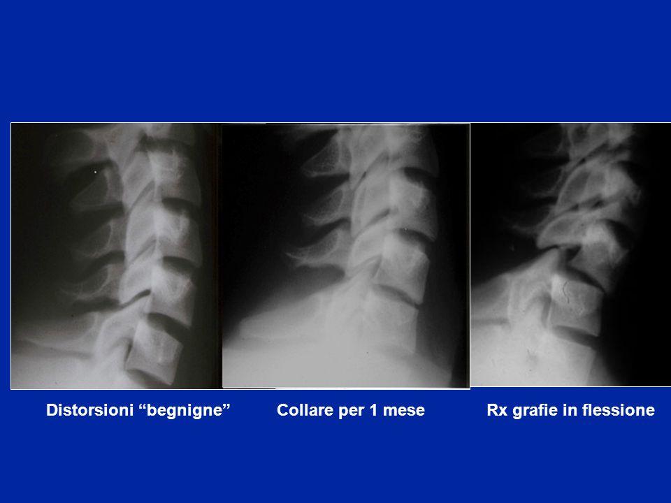 Distorsioni begnigne Collare per 1 mese Rx grafie in flessione