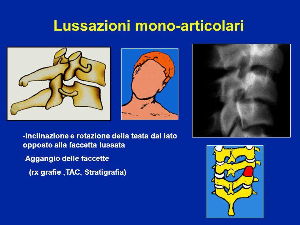 Lussazioni mono-articolari